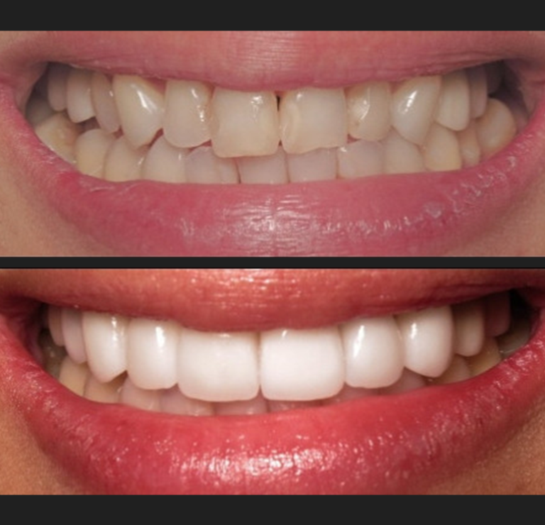 smilemakeover2